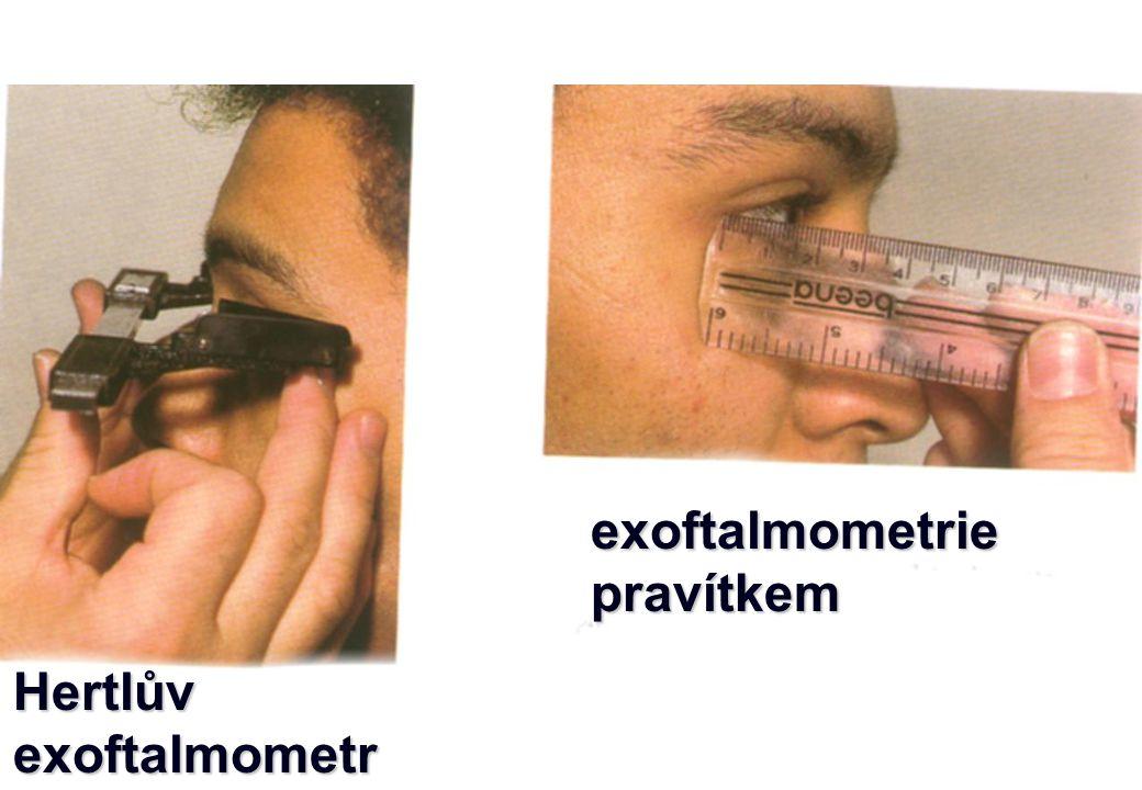 Hertlůvexoftalmometr exoftalmometriepravítkem