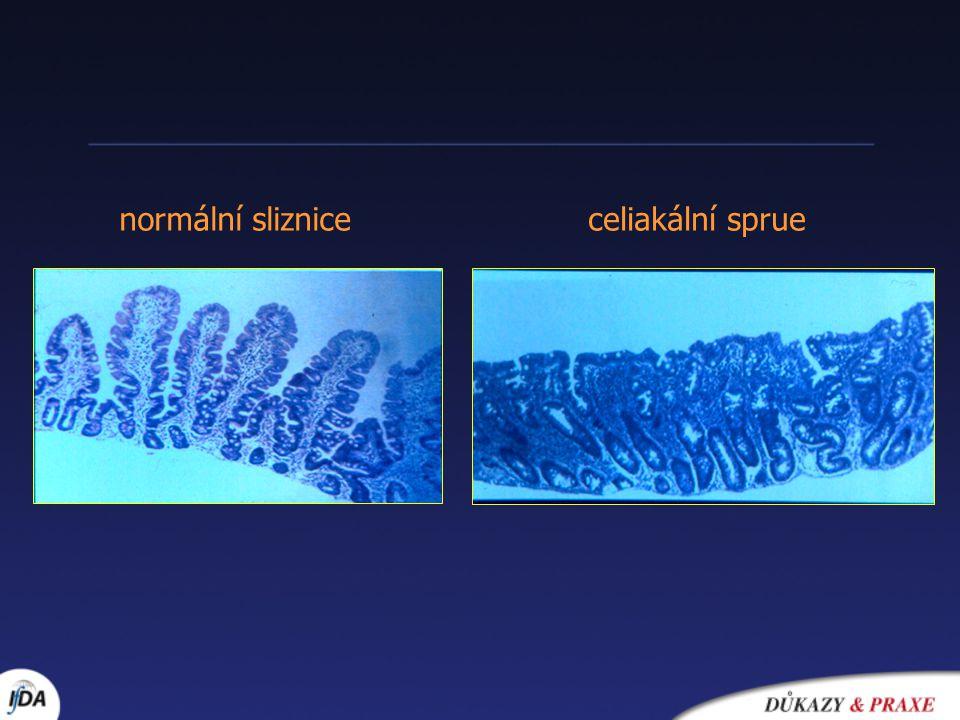 Formy celiakie Manifestace v kterémkoliv věku Protilátky Biopsie Příznaky klasická ++ typické subklinická ++ atypické silentní ++ 0 latentní +0 0 Potenciální  0/ IEL 0
