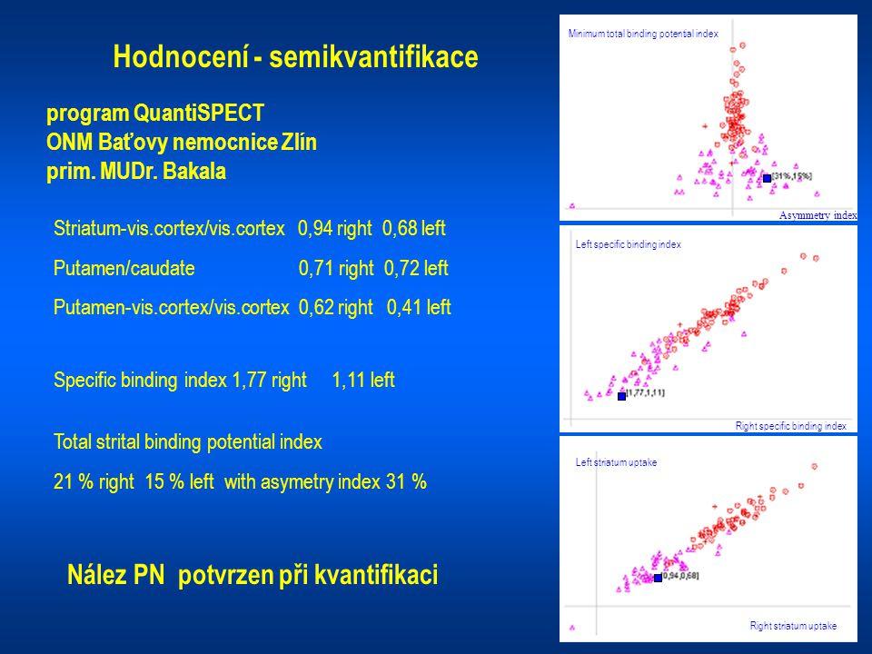 Hodnocení - semikvantifikace program QuantiSPECT ONM Baťovy nemocnice Zlín prim. MUDr. Bakala Striatum-vis.cortex/vis.cortex 0,94 right 0,68 left Puta