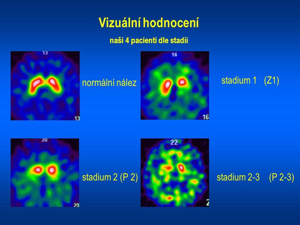 Vizuální hodnocení naši 4 pacienti dle stadií normální nález stadium 1 (Z1) stadium 2 (P 2)stadium 2-3 (P 2-3)