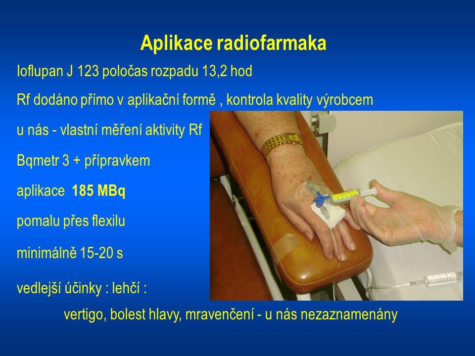 Aplikace radiofarmaka Ioflupan J 123 poločas rozpadu 13,2 hod Rf dodáno přímo v aplikační formě, kontrola kvality výrobcem u nás - vlastní měření akti