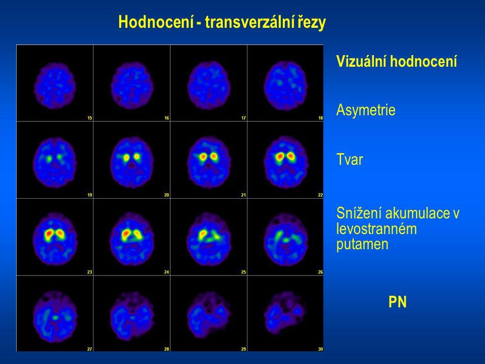 Hodnocení - transverzální řezy Vizuální hodnocení Asymetrie Tvar Snížení akumulace v levostranném putamen PN