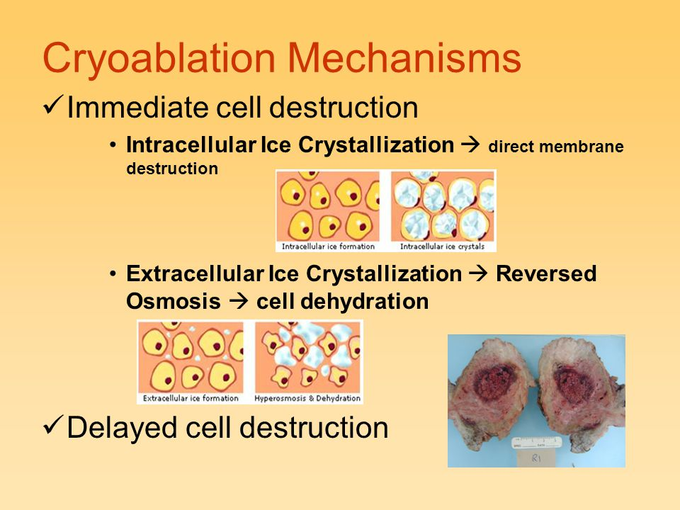 Cryoablation Mechanisms Immediate cell destruction Intracellular Ice Crystallization  direct membrane destruction Extracellular Ice Crystallization 