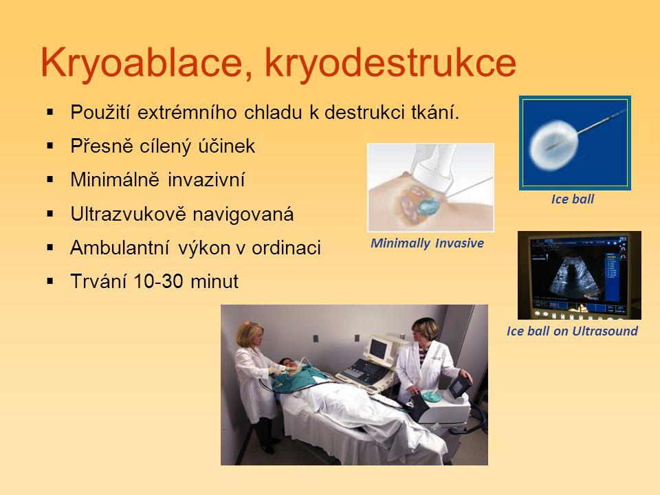 Kryoablace, kryodestrukce  Použití extrémního chladu k destrukci tkání.  Přesně cílený účinek  Minimálně invazivní  Ultrazvukově navigovaná  Ambu