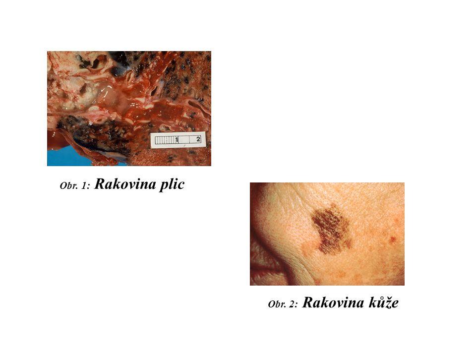 Obr. 1: Rakovina plic Obr. 2: Rakovina kůže