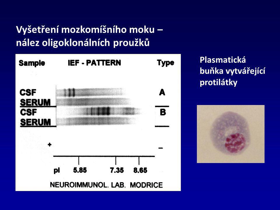 Vyšetření mozkomíšního moku – nález oligoklonálních proužků Plasmatická buňka vytvářející protilátky