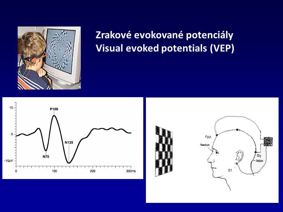 Zrakové evokované potenciály Visual evoked potentials (VEP)