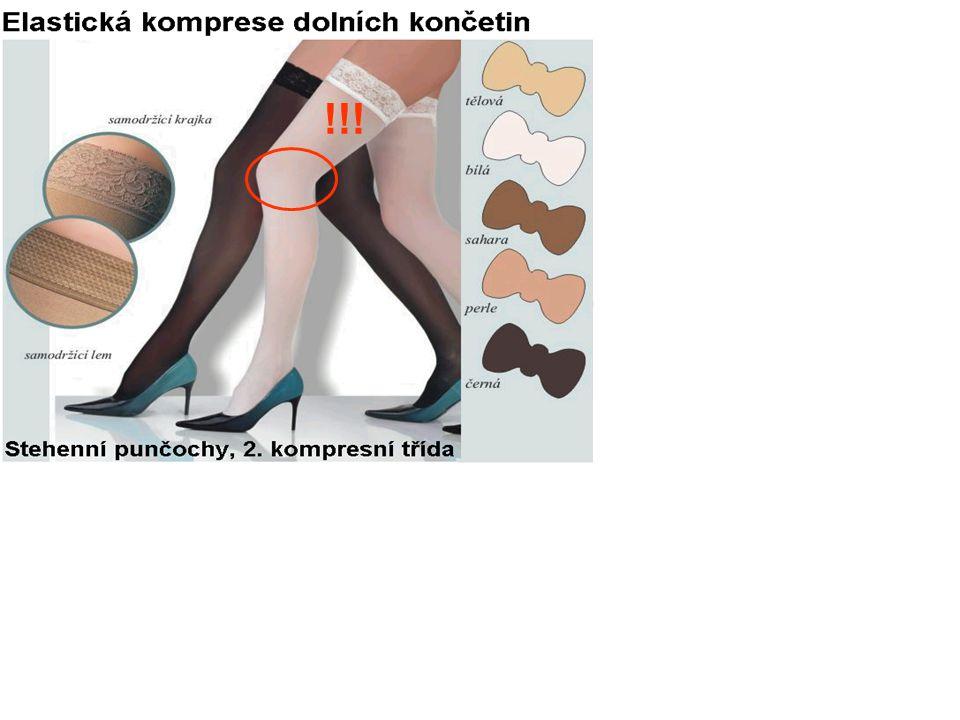 Kombinační terapie – duální protidestičková terapie ASA + klopidogrel Bez manifestního aterosklerotického postižení je kombinační léčba s klopidogrelem nevhodná St.