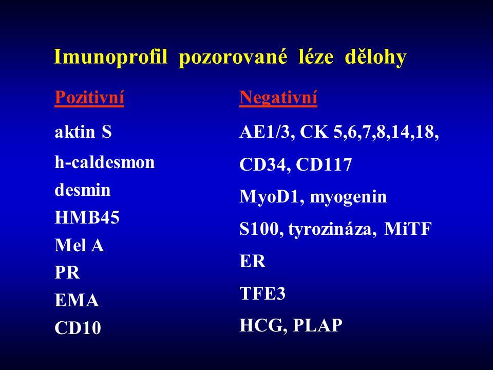 Pozitivní aktin S h-caldesmon desmin HMB45 Mel A PR EMA CD10 Negativní AE1/3, CK 5,6,7,8,14,18, CD34, CD117 MyoD1, myogenin S100, tyrozináza, MiTF ER TFE3 HCG, PLAP Imunoprofil pozorované léze dělohy
