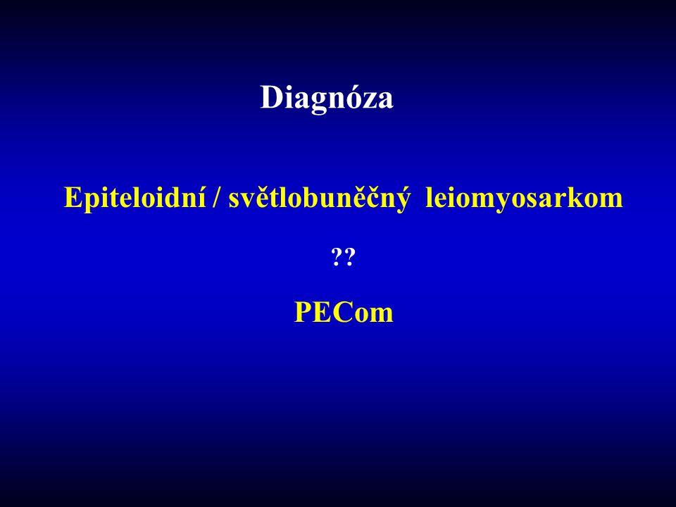 Diagnóza Epiteloidní / světlobuněčný leiomyosarkom ?? PECom
