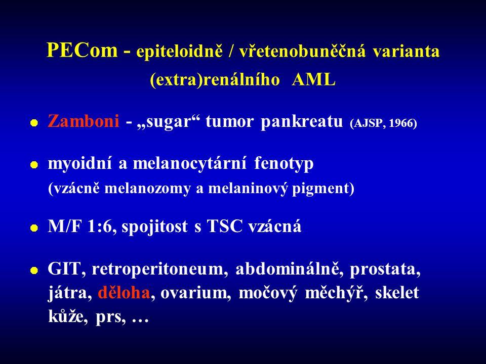 """PECom - epiteloidně / vřetenobuněčná varianta (extra)renálního AML  Zamboni - """"sugar tumor pankreatu (AJSP, 1966)  myoidní a melanocytární fenotyp (vzácně melanozomy a melaninový pigment)  M/F 1:6, spojitost s TSC vzácná  GIT, retroperitoneum, abdominálně, prostata, játra, děloha, ovarium, močový měchýř, skelet kůže, prs, …"""