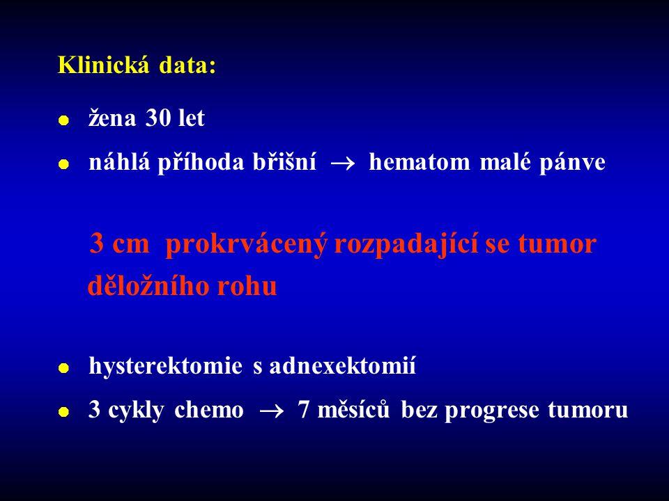  žena 30 let  náhlá příhoda břišní  hematom malé pánve 3 cm prokrvácený rozpadající se tumor děložního rohu  hysterektomie s adnexektomií  3 cykly chemo  7 měsíců bez progrese tumoru Klinická data: