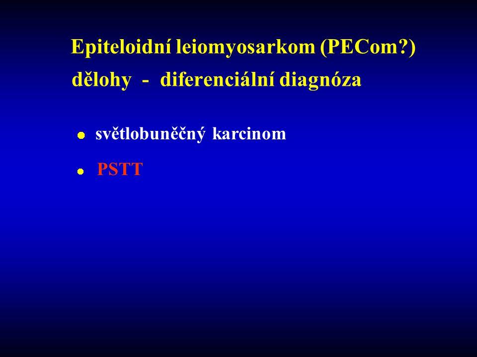 Epiteloidní leiomyosarkom (PECom?) dělohy - diferenciální diagnóza  světlobuněčný karcinom  PSTT