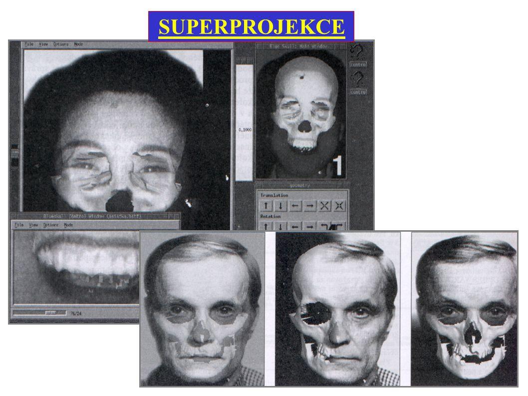 Metoda promítání obrazu lebky do portrétu pohřešované osoby Využívá se k identifikaci mrtvol neznámé totožnosti SUPERPROJEKCE