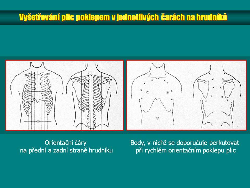 Vyšetřování plic poklepem v jednotlivých čarách na hrudníků Orientační čáry na přední a zadní straně hrudníku Body, v nichž se doporučuje perkutovat při rychlém orientačním poklepu plic
