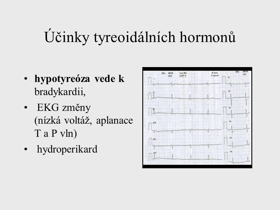 Účinky tyreoidálních hormonů hypotyreóza vede k bradykardii, EKG změny (nízká voltáž, aplanace T a P vln) hydroperikard