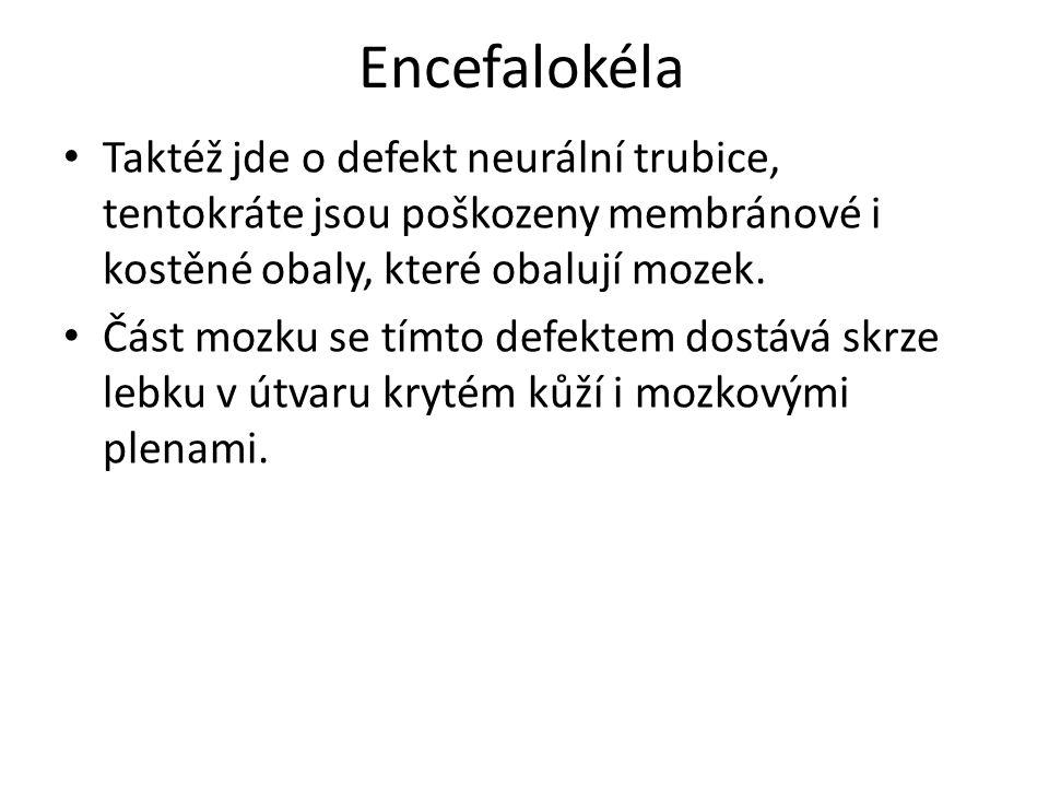 Encefalokéla Taktéž jde o defekt neurální trubice, tentokráte jsou poškozeny membránové i kostěné obaly, které obalují mozek.