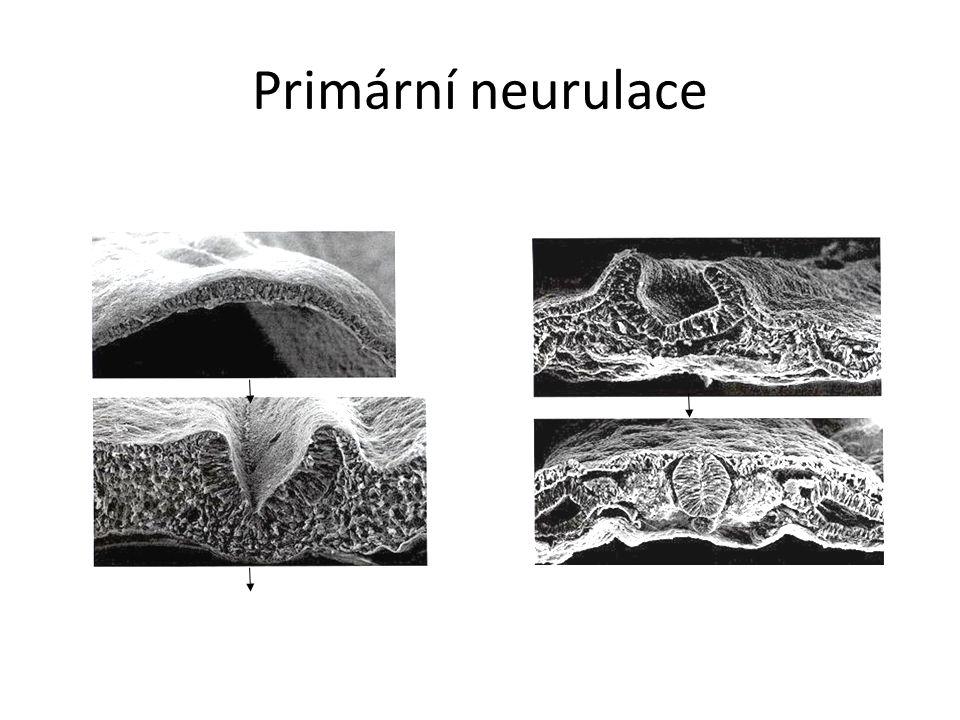 Primární neurulace