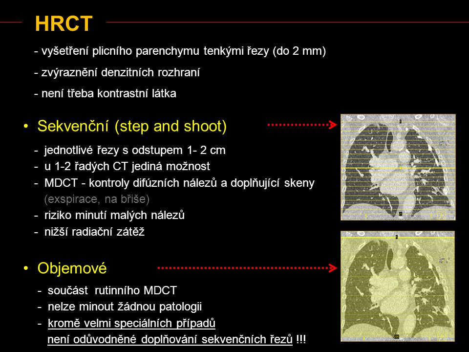 HRCT Sekvenční (step and shoot) Objemové - jednotlivé řezy s odstupem 1- 2 cm - u 1-2 řadých CT jediná možnost - MDCT - kontroly difúzních nálezů a do