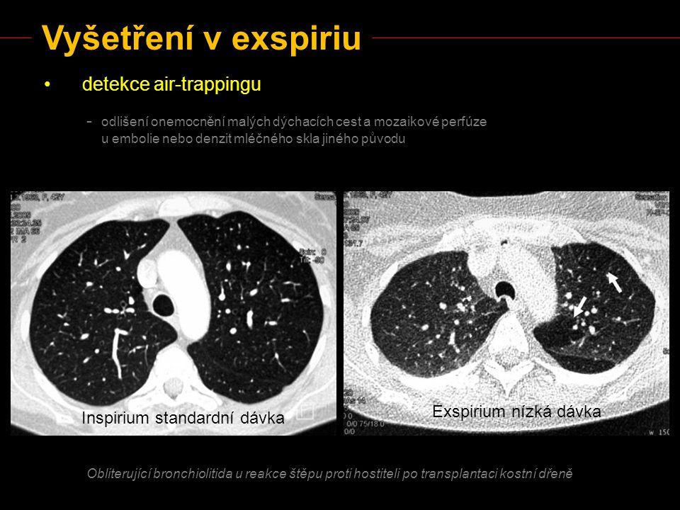 Vyšetření v exspiriu detekce air-trappingu - odlišení onemocnění malých dýchacích cest a mozaikové perfúze u embolie nebo denzit mléčného skla jiného