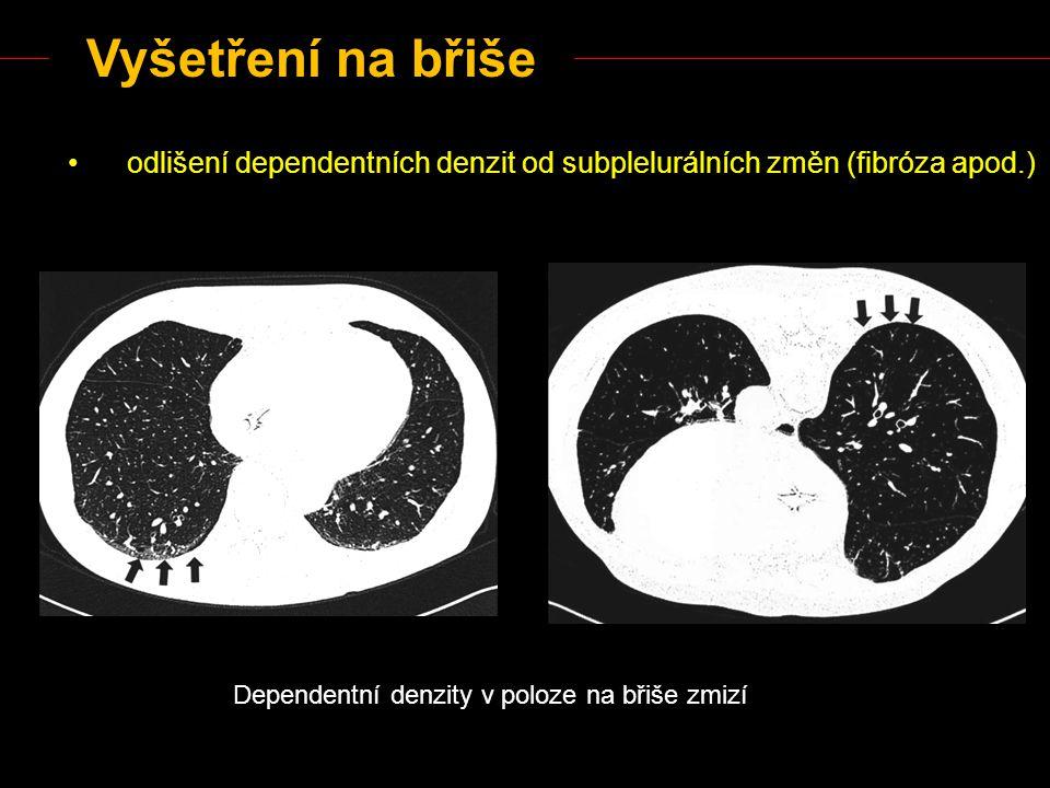 Vyšetření na břiše odlišení dependentních denzit od subplelurálních změn (fibróza apod.) Dependentní denzity v poloze na břiše zmizí