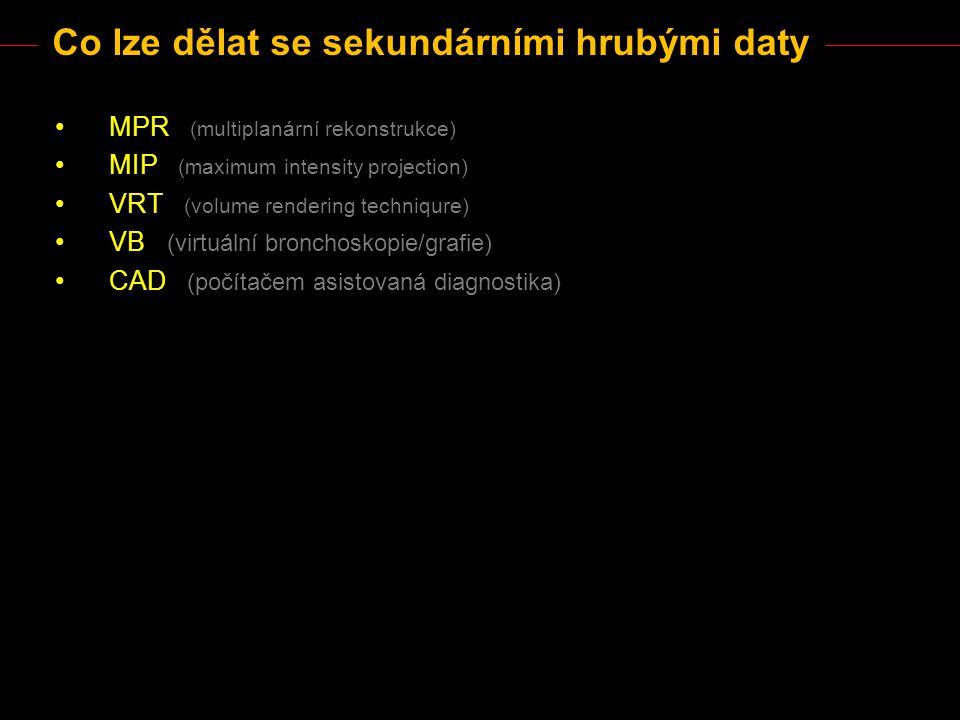 Co lze dělat se sekundárními hrubými daty MPR (multiplanární rekonstrukce) MIP (maximum intensity projection) VRT (volume rendering techniqure) VB (vi