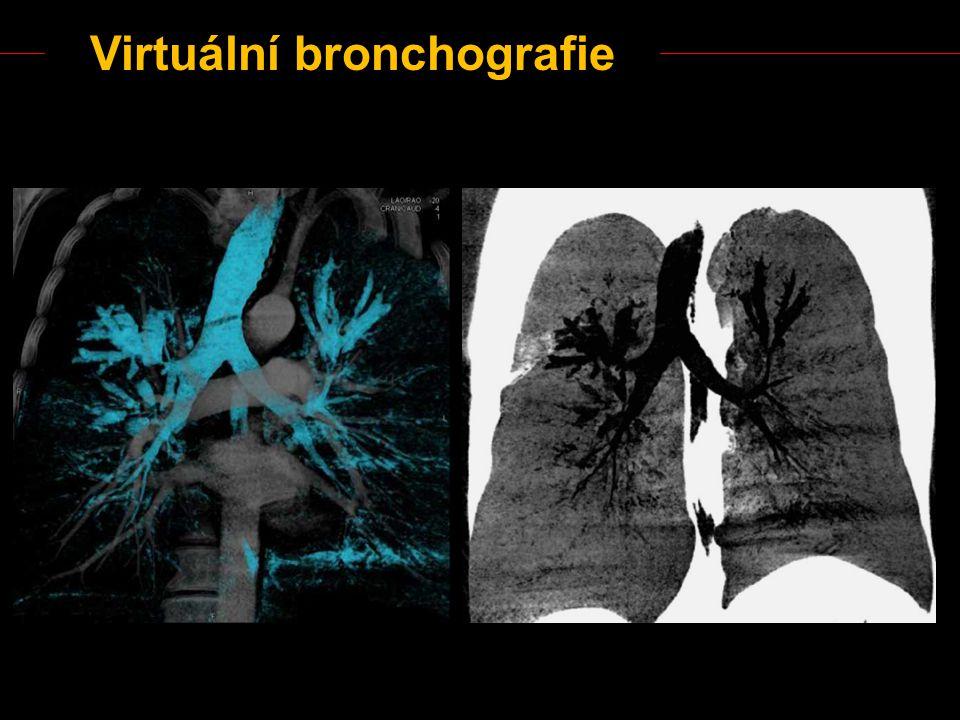 Virtuální bronchografie