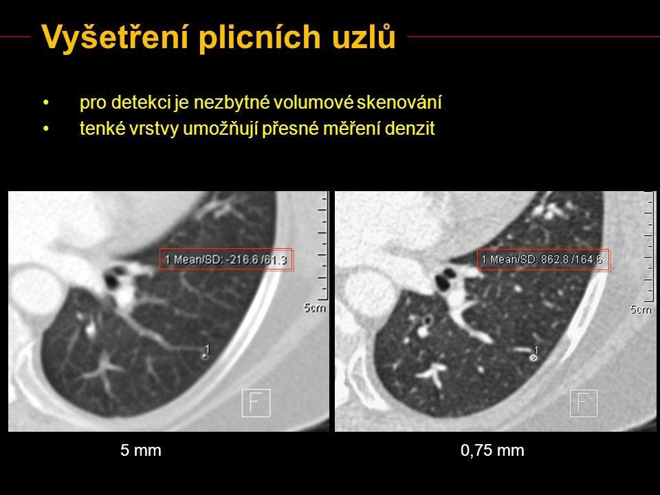 Vyšetření plicních uzlů pro detekci je nezbytné volumové skenování tenké vrstvy umožňují přesné měření denzit 5 mm0,75 mm