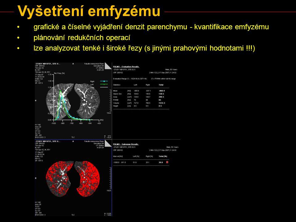Vyšetření emfyzému grafické a číselné vyjádření denzit parenchymu - kvantifikace emfyzému plánování redukčních operací lze analyzovat tenké i široké ř
