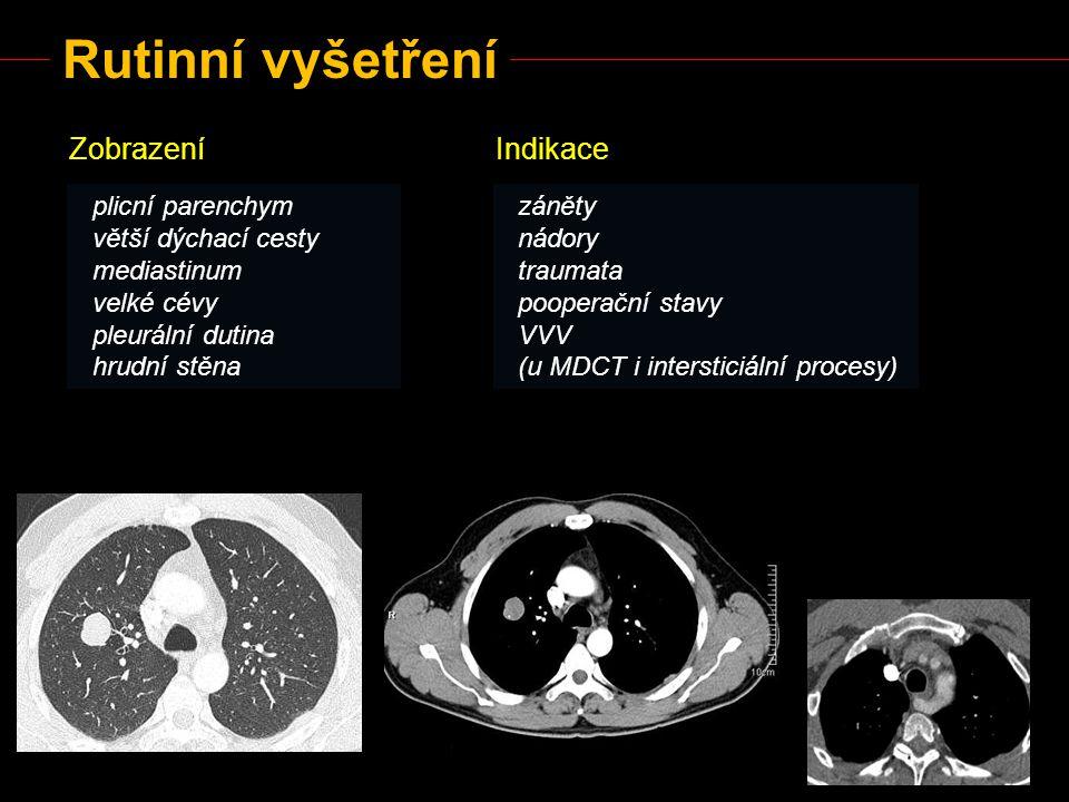 Rutinní vyšetření Zobrazení plicní parenchym větší dýchací cesty mediastinum velké cévy pleurální dutina hrudní stěna Indikace záněty nádory traumata