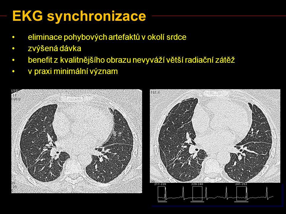 EKG synchronizace eliminace pohybových artefaktů v okolí srdce zvýšená dávka benefit z kvalitnějšího obrazu nevyváží větší radiační zátěž v praxi mini