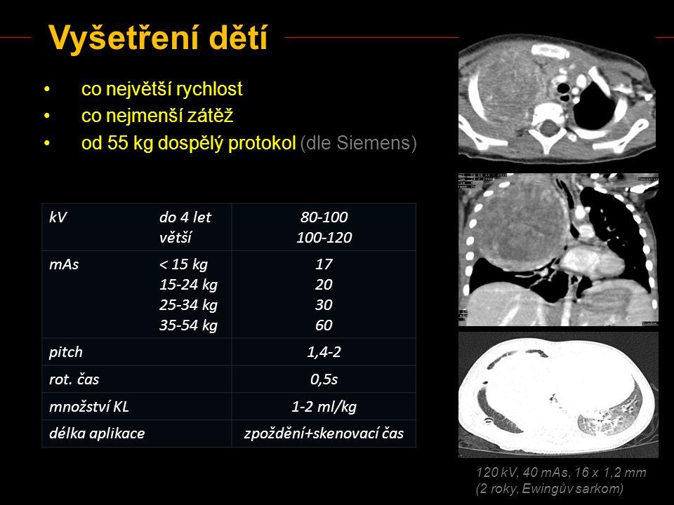 HRCT Sekvenční (step and shoot) Objemové - jednotlivé řezy s odstupem 1- 2 cm - u 1-2 řadých CT jediná možnost - MDCT - kontroly difúzních nálezů a doplňující skeny (exspirace, na břiše) - riziko minutí malých nálezů - nižší radiační zátěž - vyšetření plicního parenchymu tenkými řezy (do 2 mm) - zvýraznění denzitních rozhraní - není třeba kontrastní látka - součást rutinního MDCT - nelze minout žádnou patologii - kromě velmi speciálních případů není odůvodněné doplňování sekvenčních řezů !!!