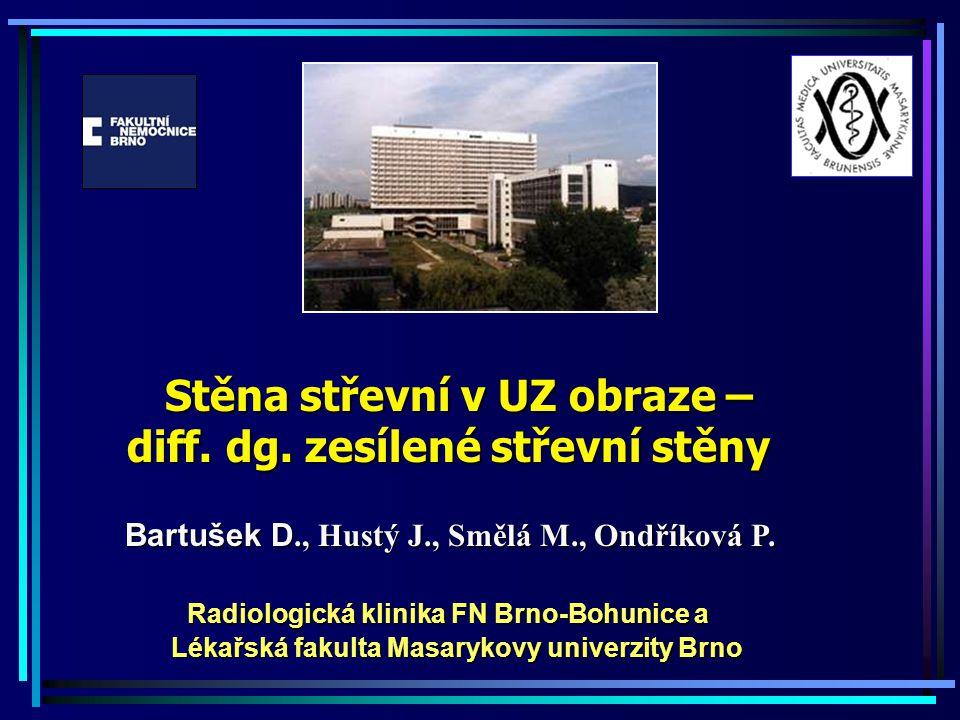 Potenciál sonografie: Sonografie břicha Výhody – práce s pacientem real time Nevýhody