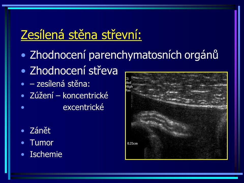 Zesílená stěna střevní: Zhodnocení parenchymatosních orgánů Zhodnocení střeva – zesílená stěna: Zúžení – koncentrické excentrické Zánět Tumor Ischemie