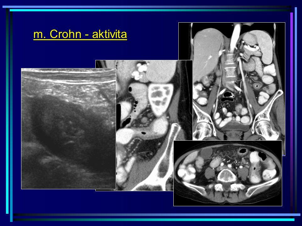 m. Crohn - aktivita