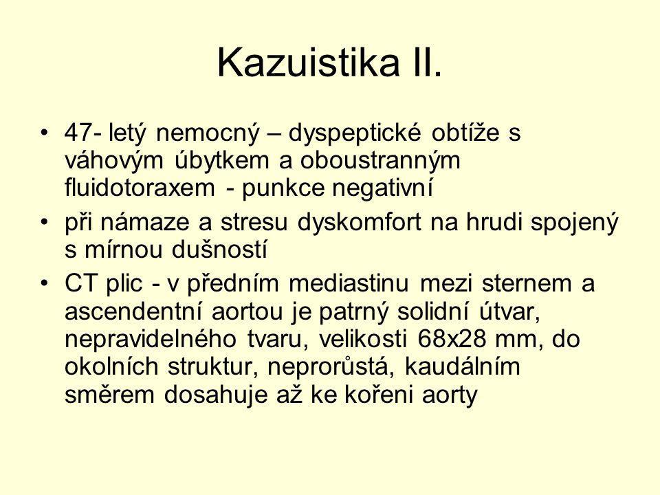 Kazuistika II. 47- letý nemocný – dyspeptické obtíže s váhovým úbytkem a oboustranným fluidotoraxem - punkce negativní při námaze a stresu dyskomfort
