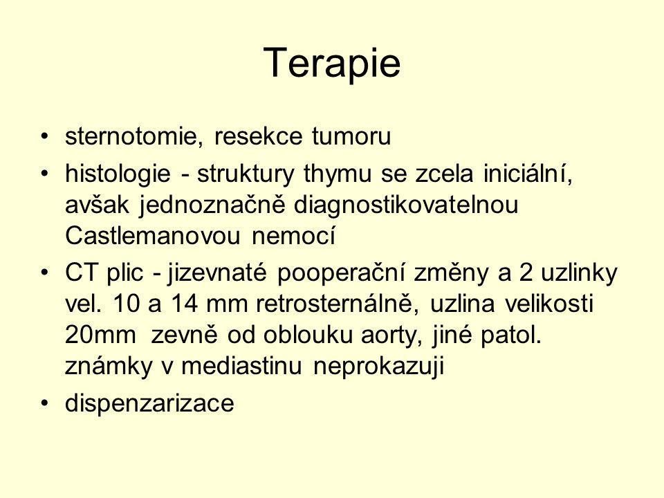 Terapie sternotomie, resekce tumoru histologie - struktury thymu se zcela iniciální, avšak jednoznačně diagnostikovatelnou Castlemanovou nemocí CT pli