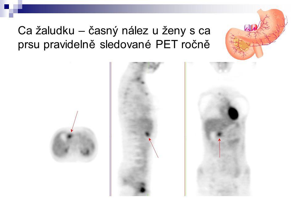 Ca žaludku – časný nález u ženy s ca prsu pravidelně sledované PET ročně
