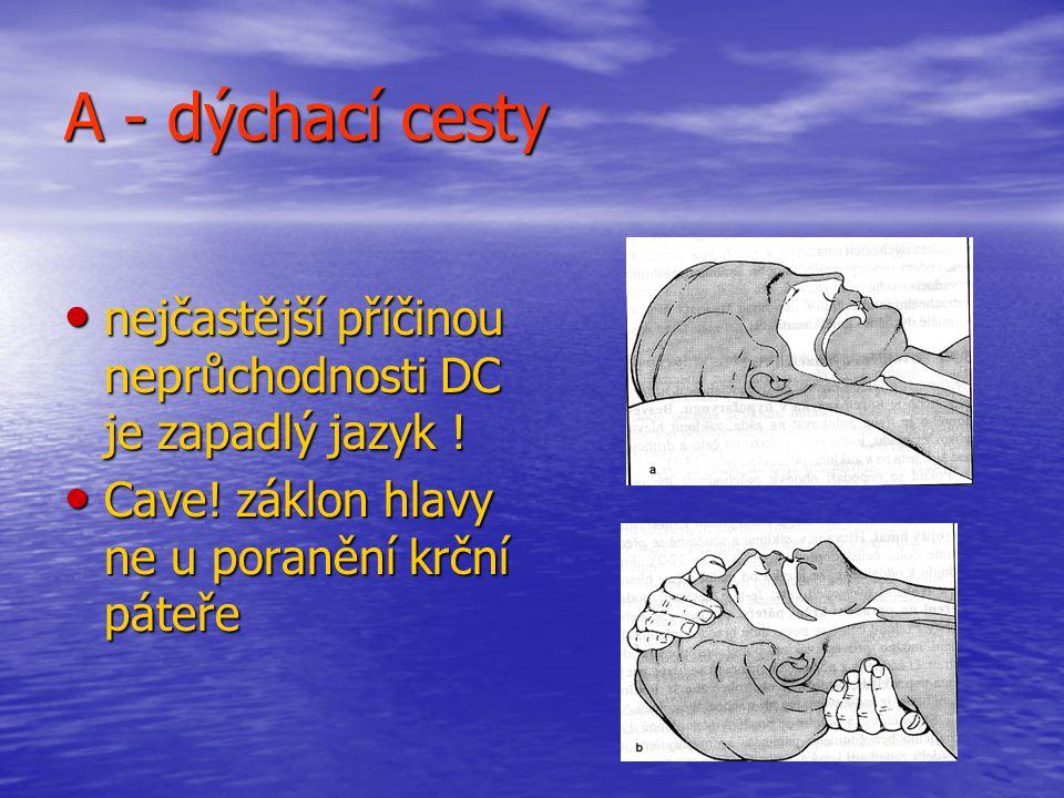 A - dýchací cesty nejčastější příčinou neprůchodnosti DC je zapadlý jazyk .