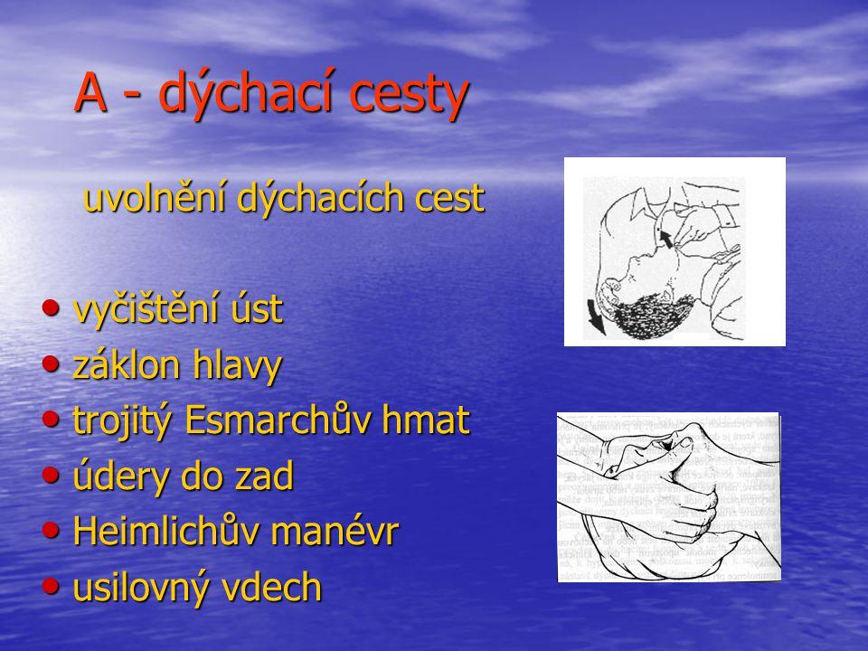 A - dýchací cesty uvolnění dýchacích cest uvolnění dýchacích cest vyčištění úst vyčištění úst záklon hlavy záklon hlavy trojitý Esmarchův hmat trojitý Esmarchův hmat údery do zad údery do zad Heimlichův manévr Heimlichův manévr usilovný vdech usilovný vdech