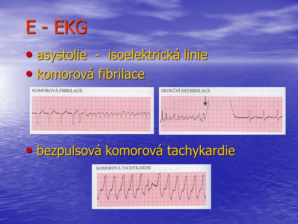E - EKG asystolie - isoelektrická linie asystolie - isoelektrická linie komorová fibrilace komorová fibrilace bezpulsová komorová tachykardie bezpulsová komorová tachykardie