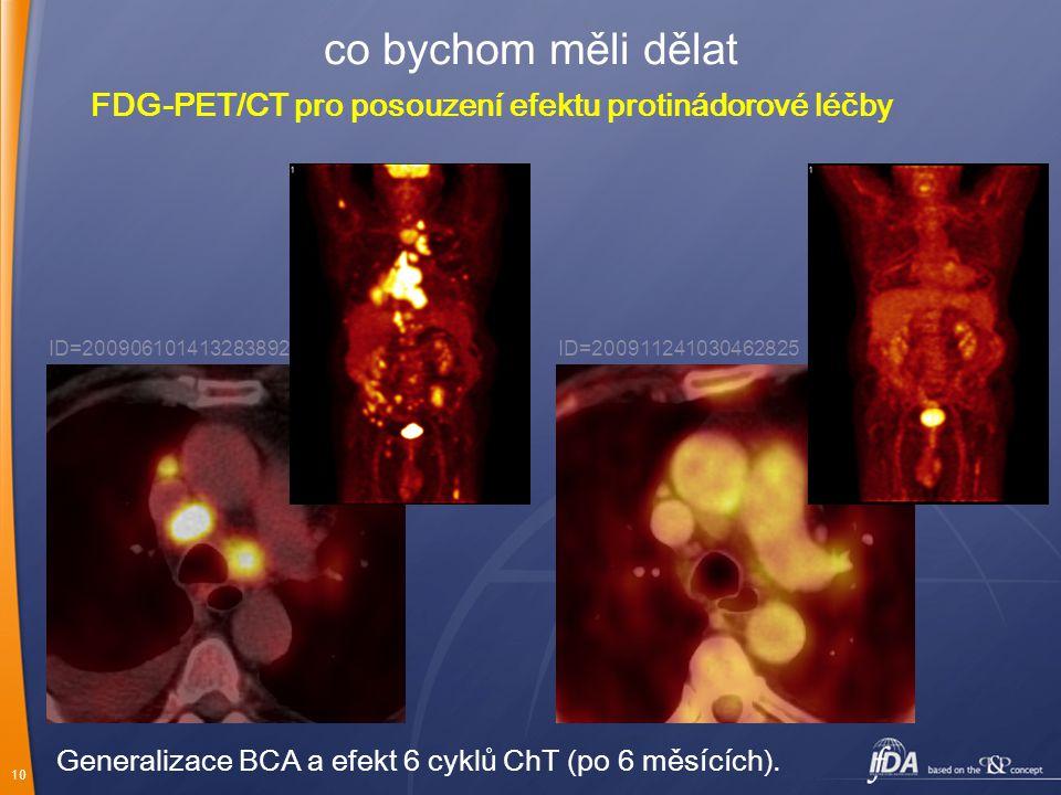 10 co bychom měli dělat FDG-PET/CT pro posouzení efektu protinádorové léčby ID=200906101413283892ID=200911241030462825 Generalizace BCA a efekt 6 cykl