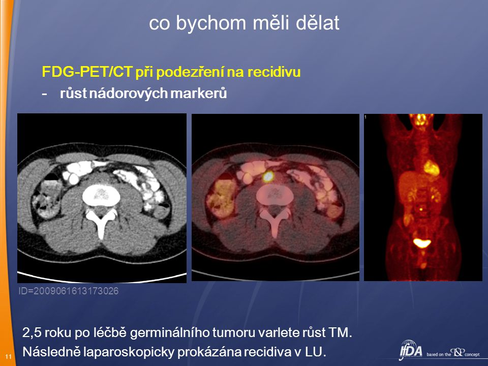 11 co bychom měli dělat FDG-PET/CT při podezření na recidivu -růst nádorových markerů ID=2009061613173026 2,5 roku po léčbě germinálního tumoru varlet