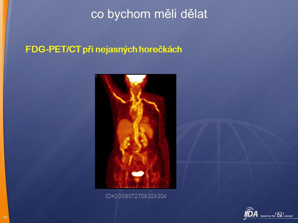 12 co bychom měli dělat FDG-PET/CT při nejasných horečkách ID=2009072709324304