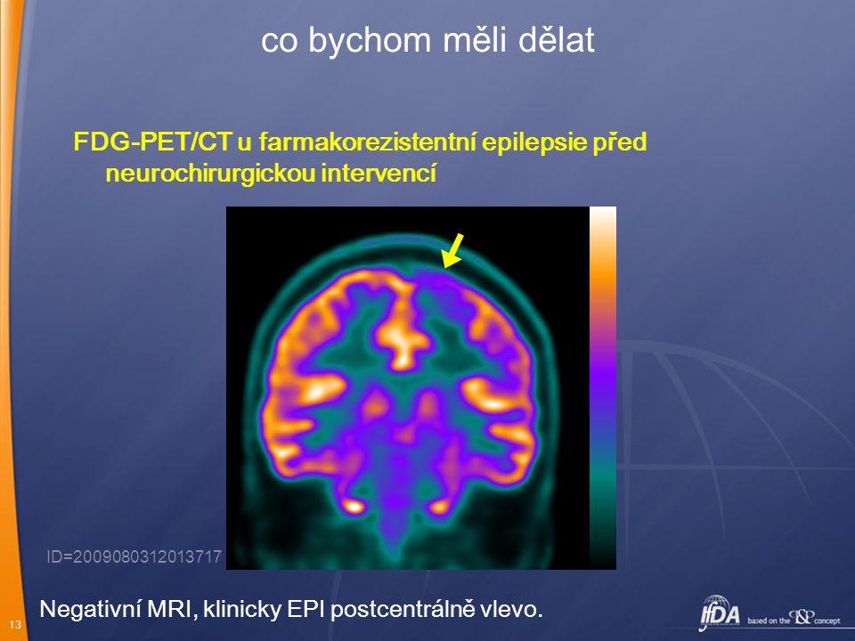 13 co bychom měli dělat FDG-PET/CT u farmakorezistentní epilepsie před neurochirurgickou intervencí ID=2009080312013717 Negativní MRI, klinicky EPI po