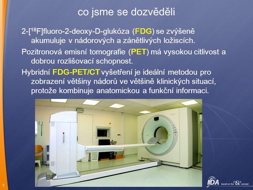 5 co jsme se dozvěděli 2-[ 18 F]fluoro-2-deoxy-D-glukóza (FDG) se zvýšeně akumuluje v nádorových a zánětlivých ložiscích. Pozitronová emisní tomografi