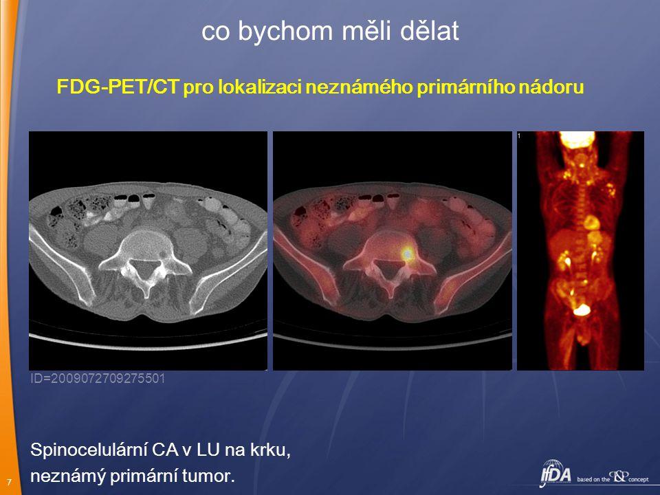 7 co bychom měli dělat FDG-PET/CT pro lokalizaci neznámého primárního nádoru Spinocelulární CA v LU na krku, neznámý primární tumor. ID=20090727092755