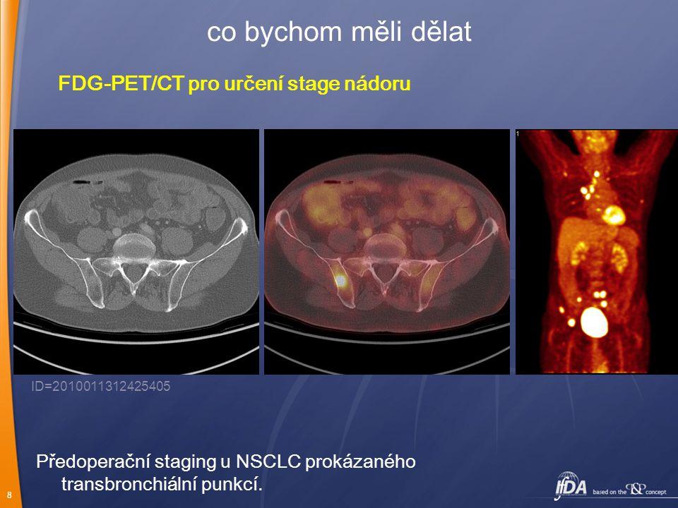 8 co bychom měli dělat FDG-PET/CT pro určení stage nádoru Předoperační staging u NSCLC prokázaného transbronchiální punkcí. ID=2010011312425405