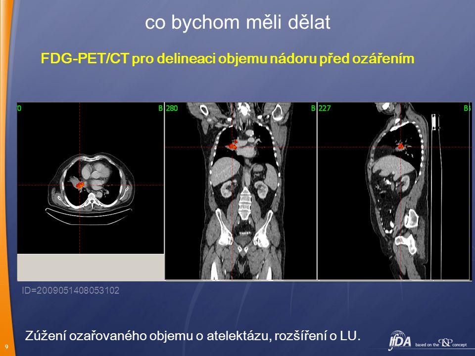 9 co bychom měli dělat FDG-PET/CT pro delineaci objemu nádoru před ozářením ID=2009051408053102 Zúžení ozařovaného objemu o atelektázu, rozšíření o LU