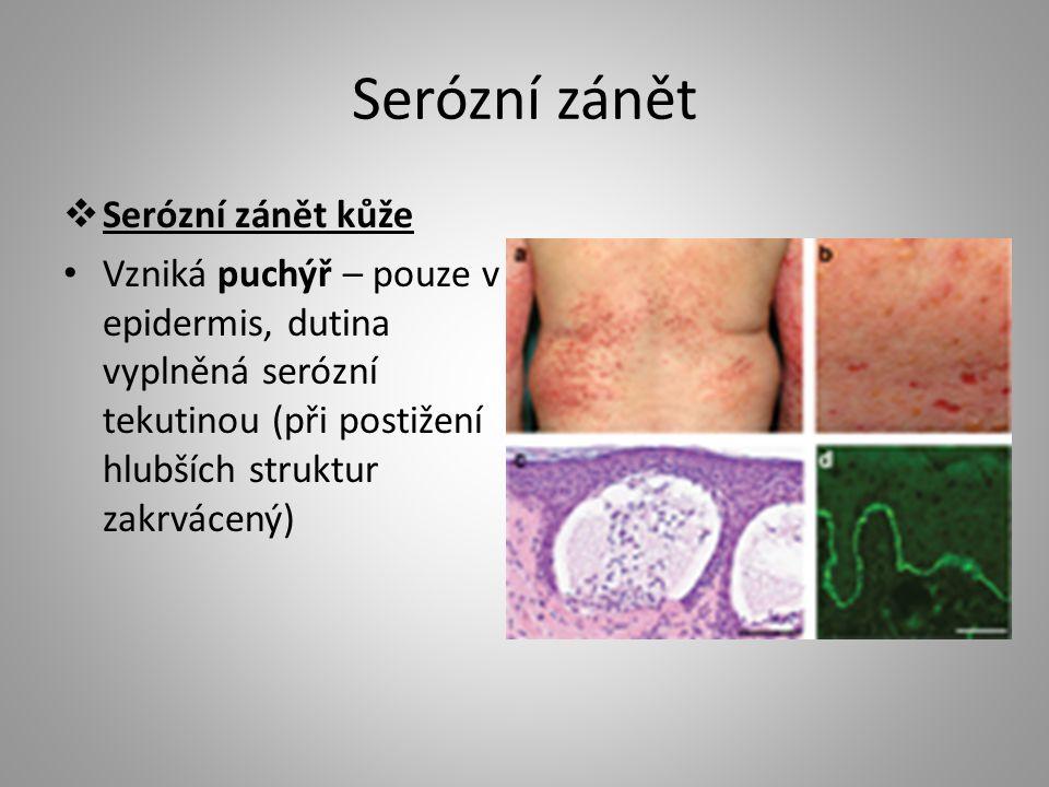 Serózní zánět  Serózní zánět kůže Vzniká puchýř – pouze v epidermis, dutina vyplněná serózní tekutinou (při postižení hlubších struktur zakrvácený)